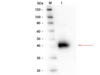 Alpha-1-Acid Glycoprotein Antibody