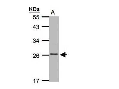 CKLFSF5 / CMTM5 Polyclonal Antibody