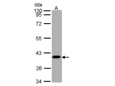 SUCLG1 / GALPHA Polyclonal Antibody