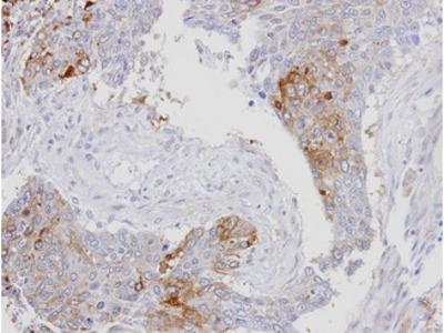 XPO7 / RANBP16 Antibody
