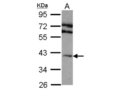 ADORA2A/Adenosine A2A Receptor Antibody