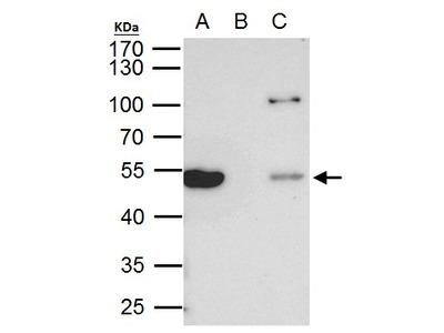 TUBB8 / Tubulin Beta 8 Antibody