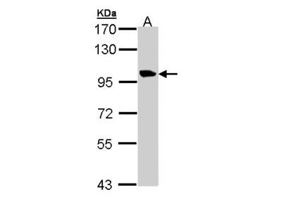 TMEM67 Antibody