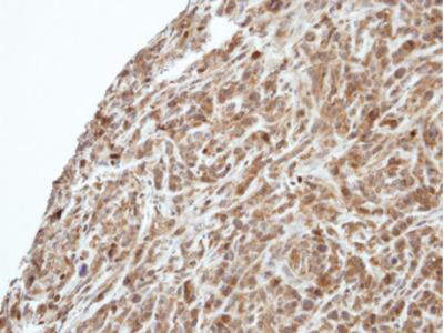 PIK3R3 / p85 Gamma Antibody
