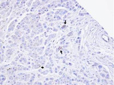 TRPM2 Polyclonal Antibody