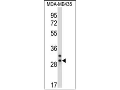 anti Elastase-2A (C-term)