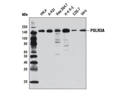 POLR3A (D5Y2D) Rabbit mAb