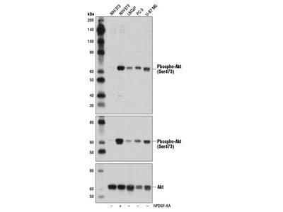 Phospho Akt protein expression analysis via Western blotting