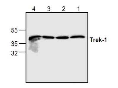 Trek1 Antibody