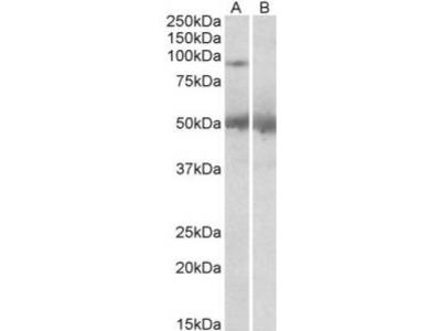 Goat Anti-USP6 / TRE2 / TRE17 Antibody