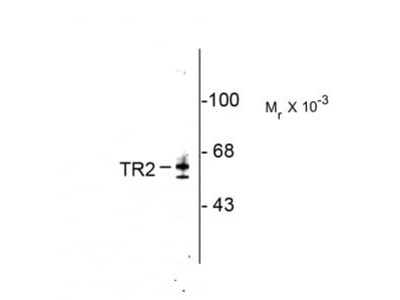 Rabbit Anti-Testicular Receptor 2 (TR2) Antibody