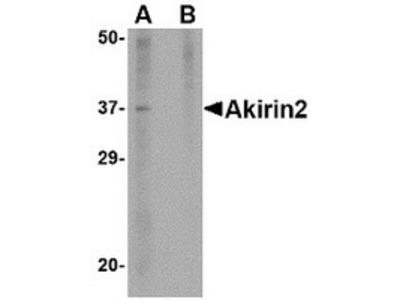 Rabbit Polyclonal Akirin2 Antibody