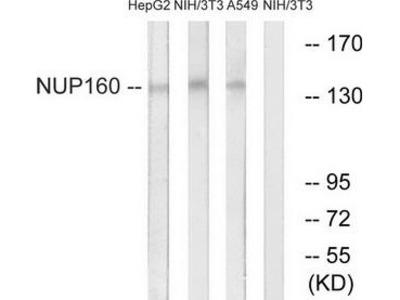 Rabbit polyclonal anti-NUP160 antibody
