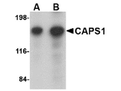 Rabbit Polyclonal CAPS1 Antibody