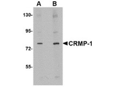 Rabbit Polyclonal CRMP1 Antibody