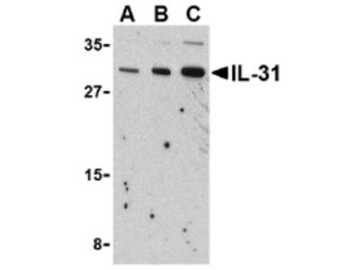 Rabbit Polyclonal IL-31 Antibody