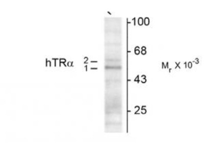 Mouse Anti-Thyroid Hormone Receptor, a1/a2-Isotype Antibody