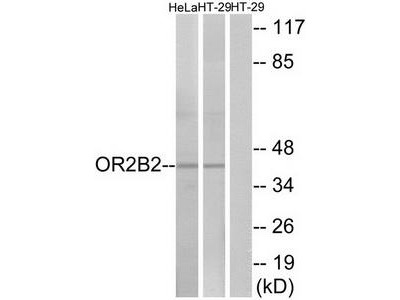 Rabbit polyclonal anti-OR2B2 antibody