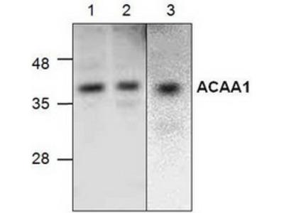 Rabbit polyclonal anti-ACAA1 antibody