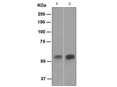 Rabbit Monoclonal antibody against Carbonic Anhydrase 9 (CA9)