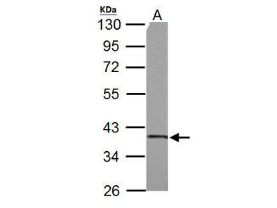 Rabbit Polyclonal antibody to SUCLG1 (succinate-CoA ligase, alpha subunit)