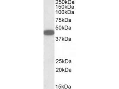 Goat Anti-CXCR6 Antibody