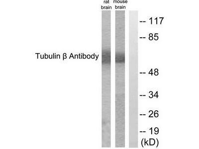 Rabbit polyclonal anti-Tubulin beta (TUBB3) antibody