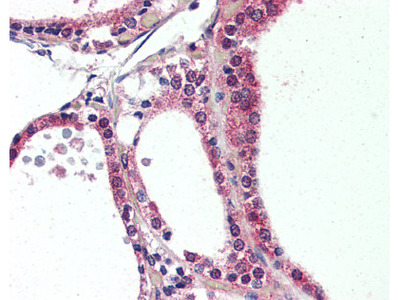 NR1D2 Rabbit Polyclonal (Internal) Antibody