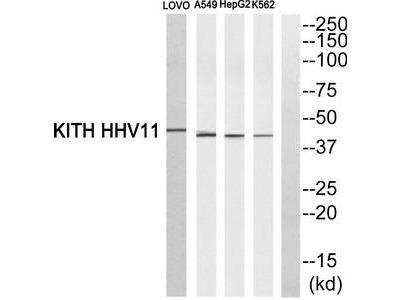 Rabbit polyclonal Thymidine Kinase 1 antibody