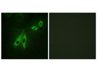 Rabbit polyclonal anti-AKAP3 antibody