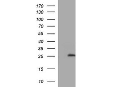 LZIC mouse monoclonal antibody, clone OTI4F9 (formerly 4F9)
