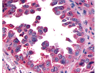 CALCRL / CRLR Rabbit Polyclonal (N-Terminus) Antibody