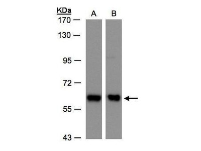 Rabbit polyclonal antibody to COPD (archain 1)