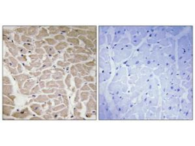Rabbit polyclonal Collagen XVI a1 antibody
