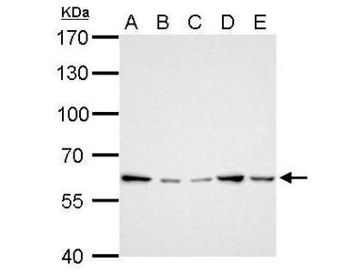 Rabbit Polyclonal antibody to GGT1 (gamma-glutamyltransferase 1)