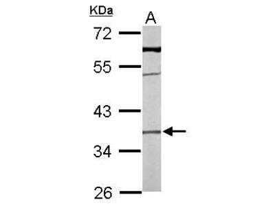 Rabbit Polyclonal antibody to TMEM59 (transmembrane protein 59)