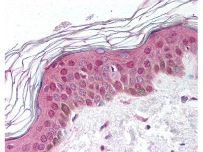 SHSF1 / SHFM1 Rabbit Polyclonal (aa57-70) Antibody