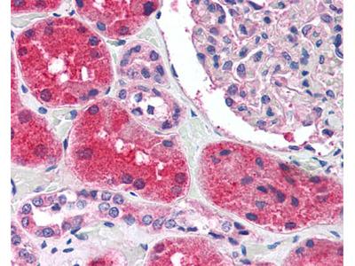 KCNN2 Rabbit Polyclonal (C-Terminus) Antibody