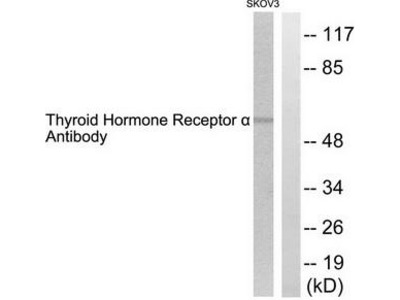 Rabbit polyclonal Thyroid Hormone Receptor a antibody