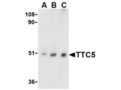 Rabbit Polyclonal TTC5 Antibody