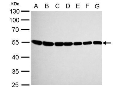 Rabbit Polyclonal antibody to beta Tubulin 8