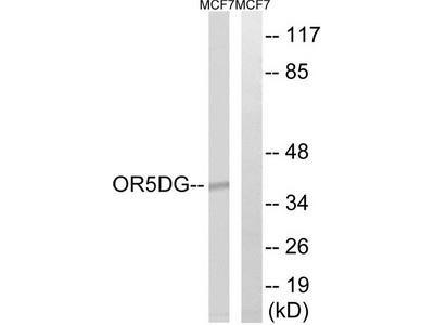Rabbit polyclonal anti-OR5D16 antibody