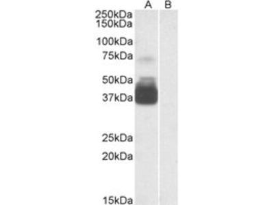 Goat Anti-P2RX7 / P2X7 receptor Antibody
