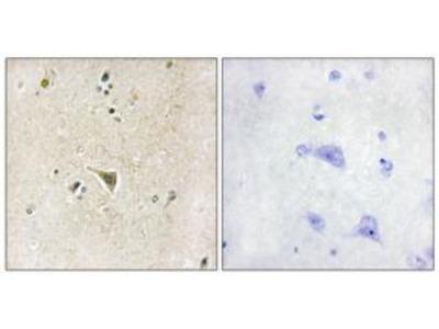 Rabbit polyclonal anti-LRRK1 antibody