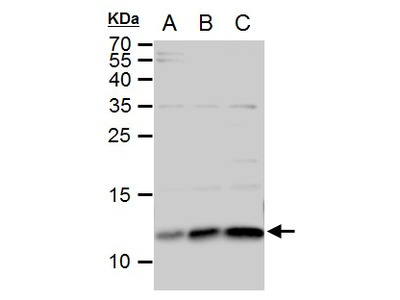 Rabbit Polyclonal antibody to ERH (enhancer of rudimentary homolog (Drosophila))