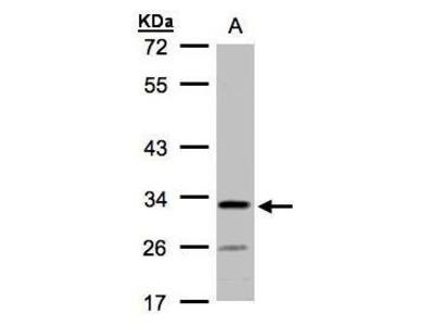 Rabbit Polyclonal antibody to LOC55286 (chromosome 4 open reading frame 19)