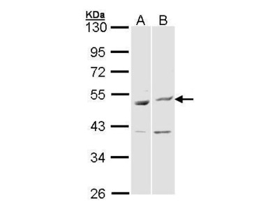 Rabbit polyclonal antibody to BAG5 (BCL2-associated athanogene 5)