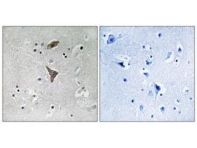 Rabbit polyclonal anti-KCNT1 antibody