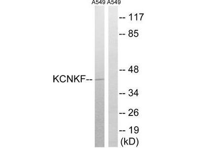 Rabbit polyclonal anti-KCNK15 antibody
