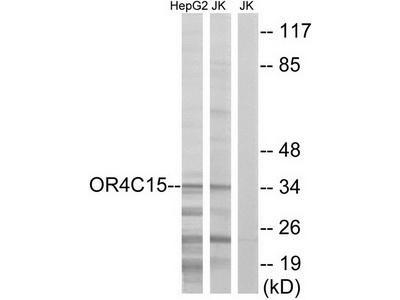 Rabbit polyclonal anti-OR4C15 antibody